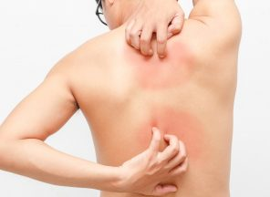 psoriasis treatment guidelines